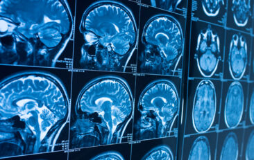 Potential treatment could help preserve brain function for stroke patients